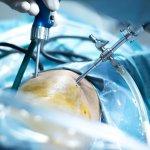 Fisioterapia para tratar cicatrices y queloides