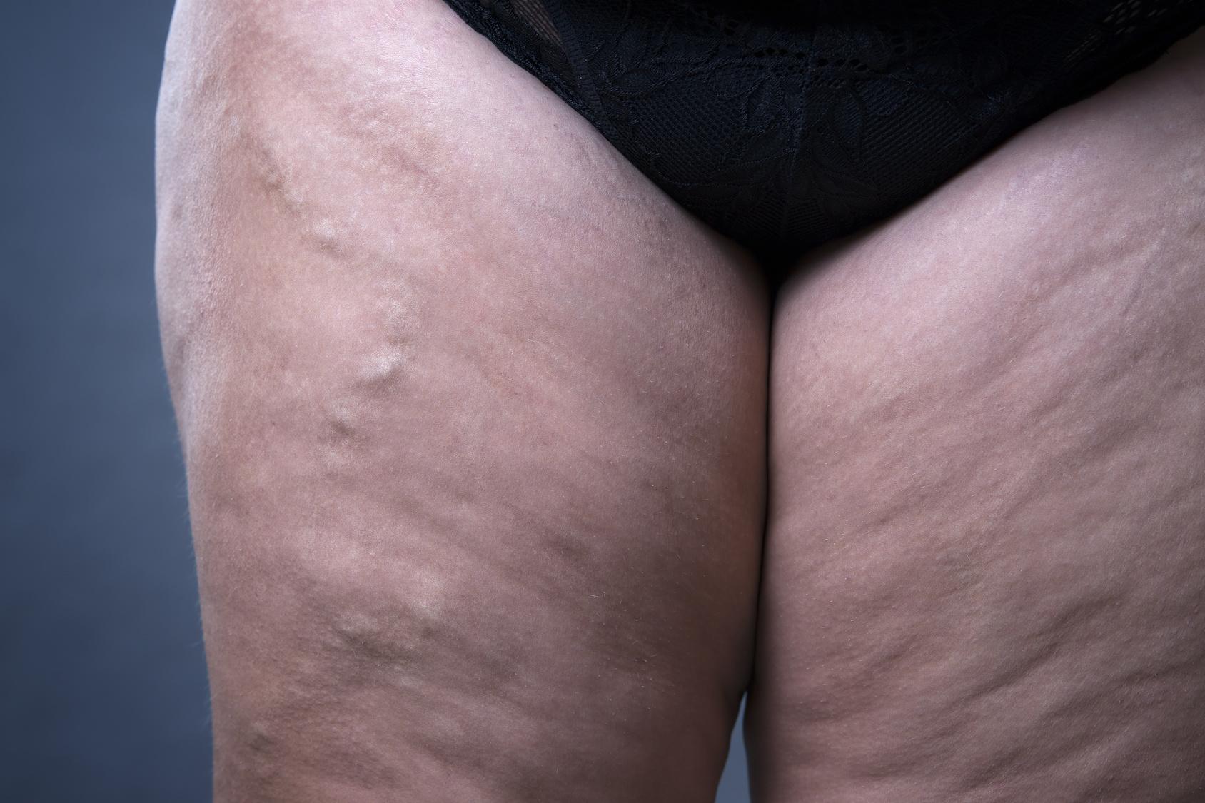 Pantorrilla la el edema muscular causa de