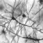 ¿Qué es la neurodinamia o movilización neural?