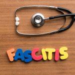 ¿Qué es y por qué se produce la fascitis plantar? ¿Qué tratamiento de fisioterpia se puede hacer?