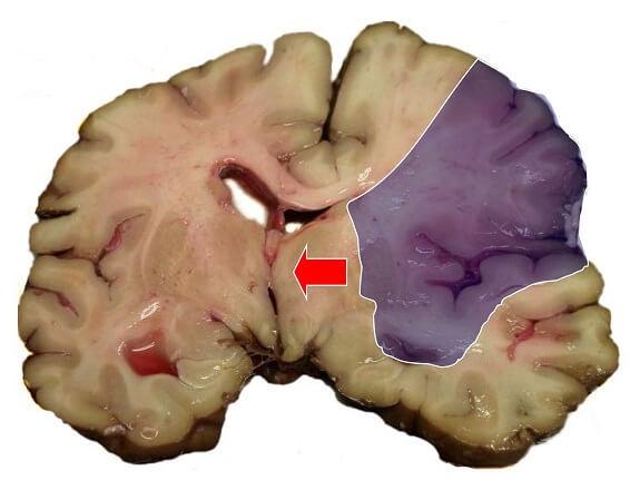 El cerebro y su responsabilidad en la hemiplejia