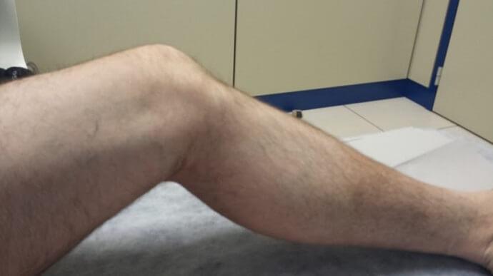 Rigidez muscular, síntoma del Parkinson