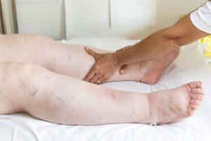 Tratamiento de edema en miembros inferiores.