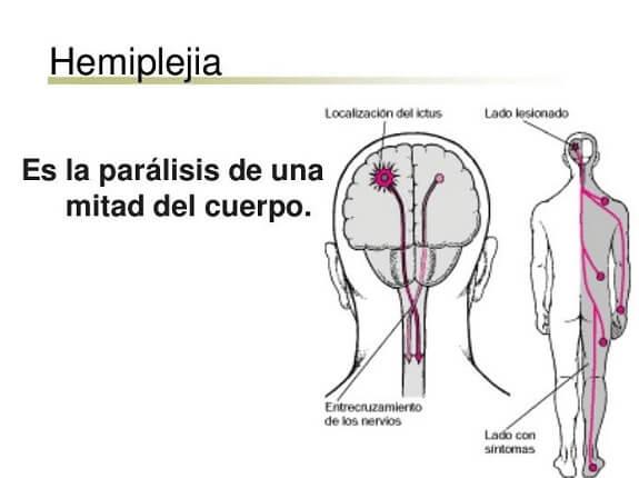 La hemiplejia y la fisioterapia