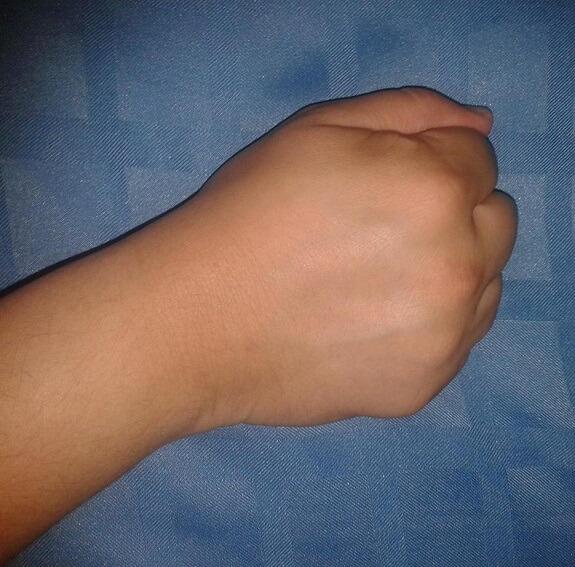 Dedos en garra