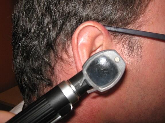 Infección en el oído, una de las causas del vértigo